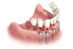 get dentures and dental implant procedures in Gush Etzion, Beit Shemesh, Jerusalem