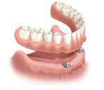 Removable denture anchored on dental implants as an alternative to a fixed bridge secured by dental implants