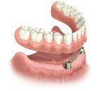 Removable denture secured to ball or bar as an alternative to a fixed bridge secured by dental implants