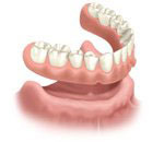 Removable full denture as an alternative to a fixed bridge secured by dental implants
