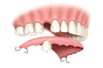 Removable partial denture as an alternative to a dental implant