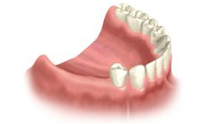 dental implant cost for dental implants in Gush Etzion, Jerusalem and Beit Shemesh