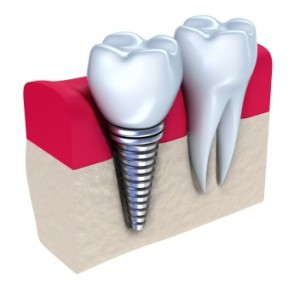 Gush Etzion, Beit Shemesh And Jerusalem Dental Implant Procedures Available