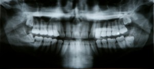 Latest Technology In Dental Implant Placement For Gush Etzion, Beit Shemesh And Jerusalem
