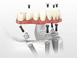 Gush Etzion, Beit Shemesh And Jerusalem Do You Want Non-Removable Prosthetic Teeth? All On 4 Available