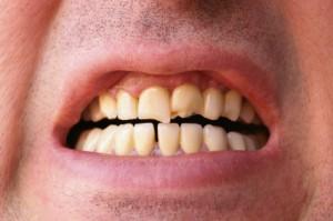 Dental Implants Gush Etzion, Beit Shemesh And Jerusalem